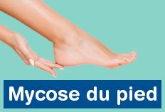 Mycose du pied